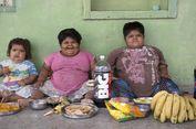 Sindrom Langka, Tiga Anak Balita Obesitas Ini Tak Pernah Berhenti Makan