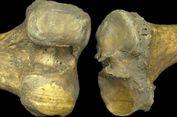 Apa yang Bisa Dipelajari dari Lutut 6.000 Tahun tentang Artritis?