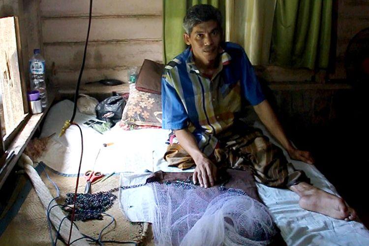 Zulmahdi (45), nelayan miskin warga Desa Kuala Ceurape, Kecamatan Jangka, Kabupaten Bireuen, Aceh, hanya dapat menangis dan pasrah menahan sakit di tempat tidur rumahnya karena paha kiri bekas dioperasi kini pen sambungan besi yang dipasang dokter telah keluar dari daging pangkal paha dan tulang betis, Jumat (24/11/2017).