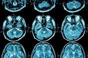 Pakai Rumus Matematika Kompleks, Peneliti Ungkap Struktur Otak