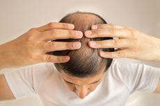 Benarkah Stres Bisa Menyebabkan Kepala Botak?
