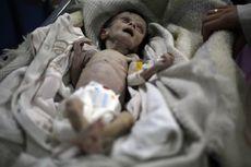 Dampak Perang Suriah, Bayi Gizi Buruk Ini Mati Mengenaskan