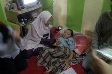 Bocah Fahri Diinfus Alendronat untuk Cegah Lebih Banyak Tulang Patah