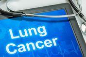 Mengenal Macam-macam Pengobatan untuk Kanker Paru