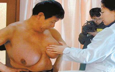 Guo Feng, Pria Berpayudara Terbesar [ www.BlogApaAja.com ]