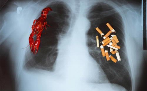 Efek Berhenti Merokok dalam Hitungan Menit