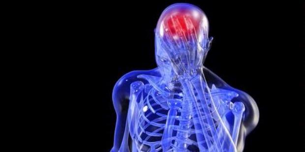 http://www.jadigitu.com/2013/01/kenapa-orang-sehat-juga-bisa-kena-stroke.html