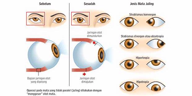Deteksi Kelainan Mata Anak Sejak Bayi   senjachy dya