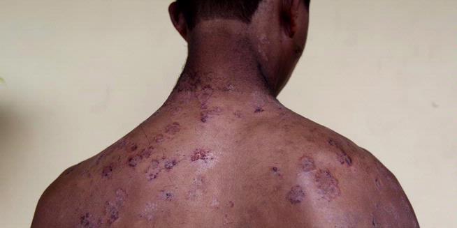 """Inilah Kekerasan yang Dilakukan Bos """"Perbudakan"""" di Tangerang"""