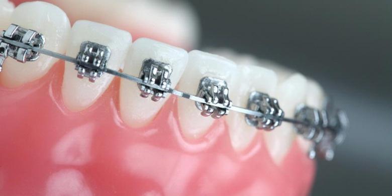 Kerapian Gigi dengan Penggunaan Behel