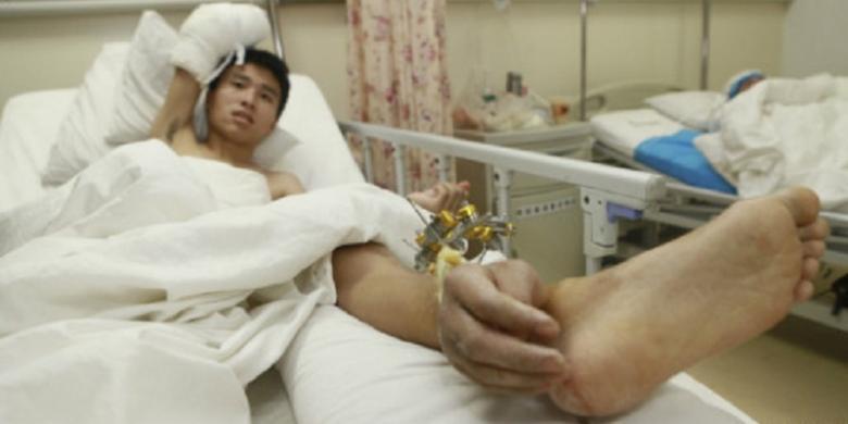UNIK - EKSTREME !  Selamatkan Tangan Terputus, Dokter di China Gunakan Kaki