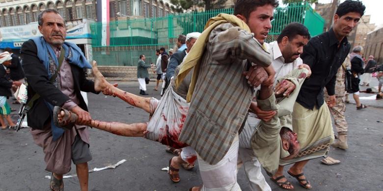 Ledakan Bom Mobil di Yaman Tewaskan 20 Anak Sekolah