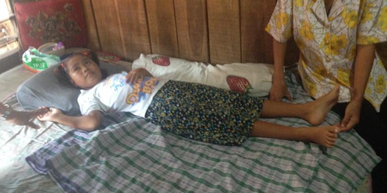 """Amelia, Bocah SD di Semarang Ini """"Lumpuh"""" karena Dijahili Temannya"""
