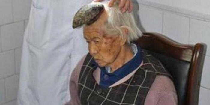 Sebuah Tanduk Tumbuh di Kepala Wanita Tua Asal China