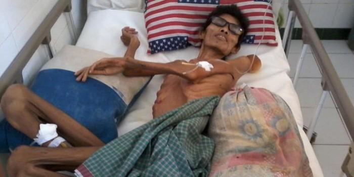 Tubuh Pasien Tinggal Tulang Berbalut Kulit, RS Bantah Penelantaran